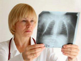 У воспитательницы ярославского детского сада выявили туберкулез.